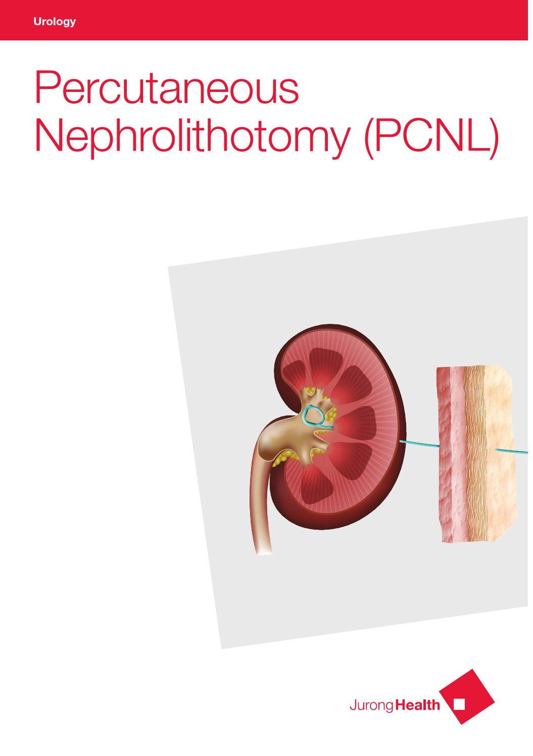 Percutaneous Nephrolithotomy Update Trends and Future