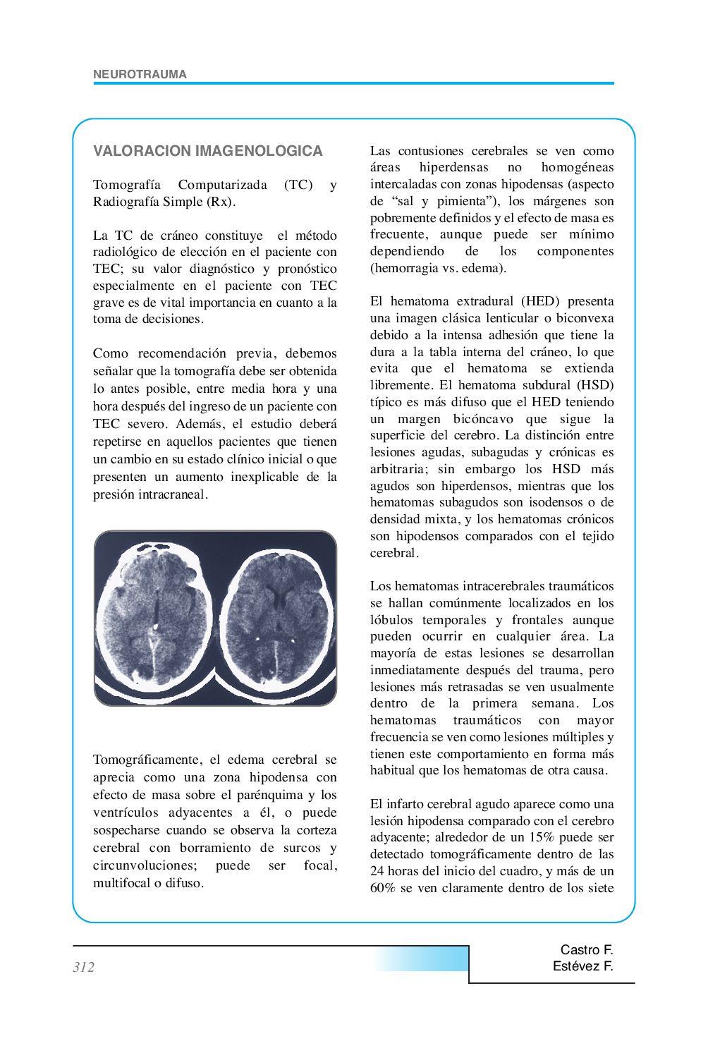 Un hematoma en el tejido cerebral