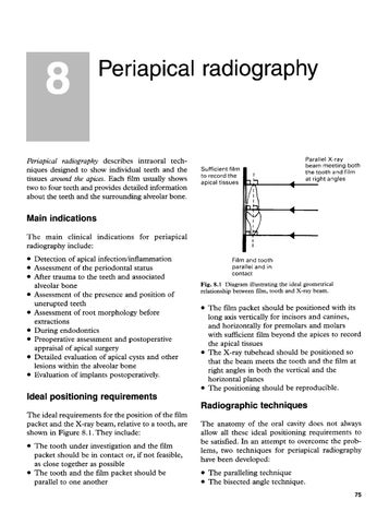 Essentialsofntalradiographydradiology by alejandro padilla page 89 8 periapical radiography ccuart Image collections