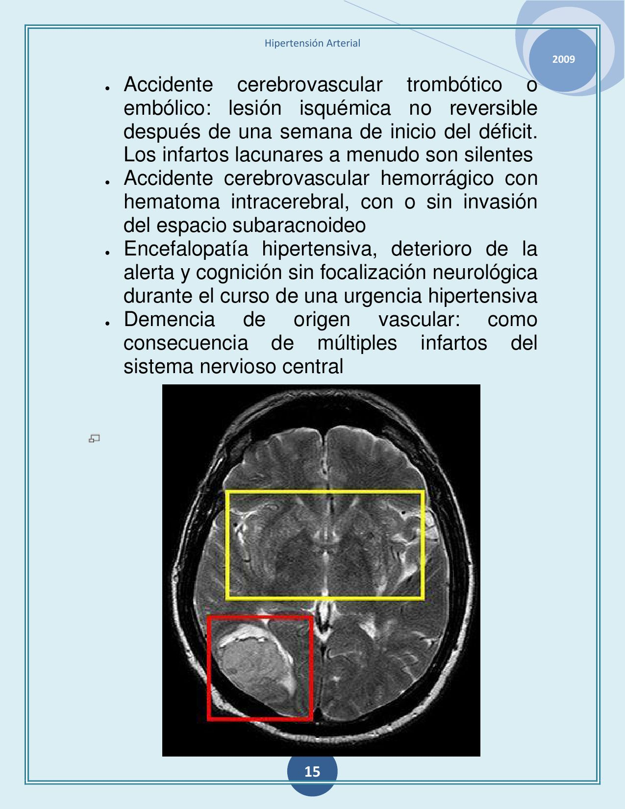 Accidente cerebrovascular hemorrágico de emergencia hipertensivo