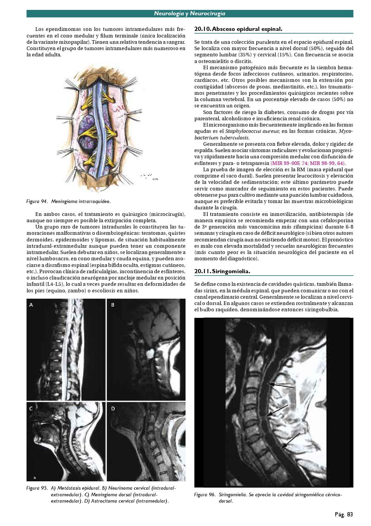Cto Neurologia By Agustin Diaz Issuu Medicine portal   encyclopedia   gray's anatomy   topics   diseases   drugs   wellness   obesity. cto neurologia by agustin diaz issuu