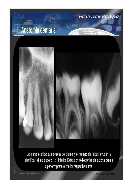 Contemporáneo Anatomía De Un Montaje Motivo - Imágenes de Anatomía ...
