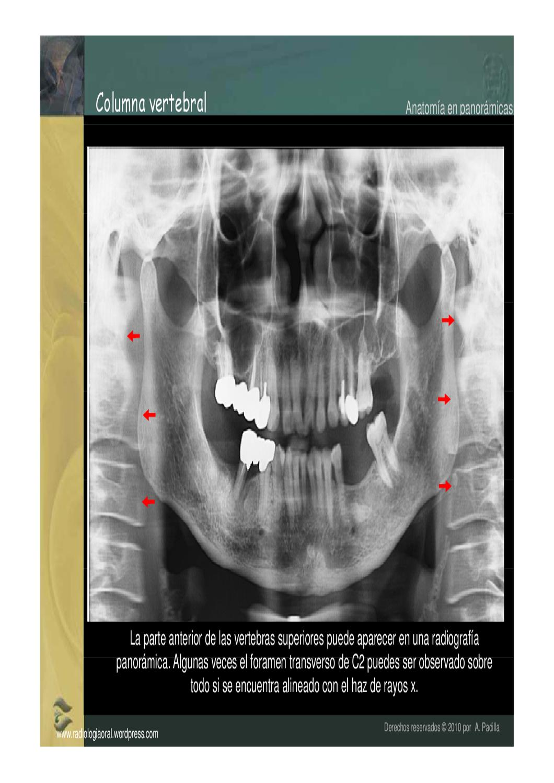 Lujoso X Panorámica Anatomía Rayos Cresta - Imágenes de Anatomía ...