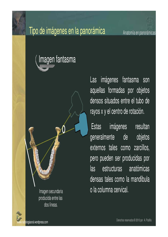 Anatomía radiográfica en panorámicas by Alejandro Padilla - issuu