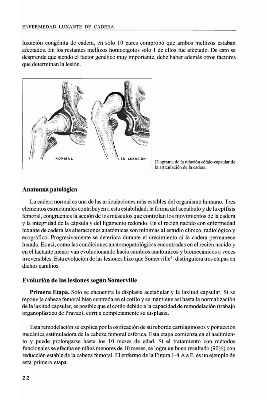 Enfermedad luxante de la cadera by ricardo sepulveda - issuu