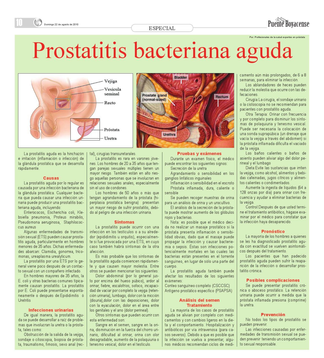prostatitis sin síntomas urinarios
