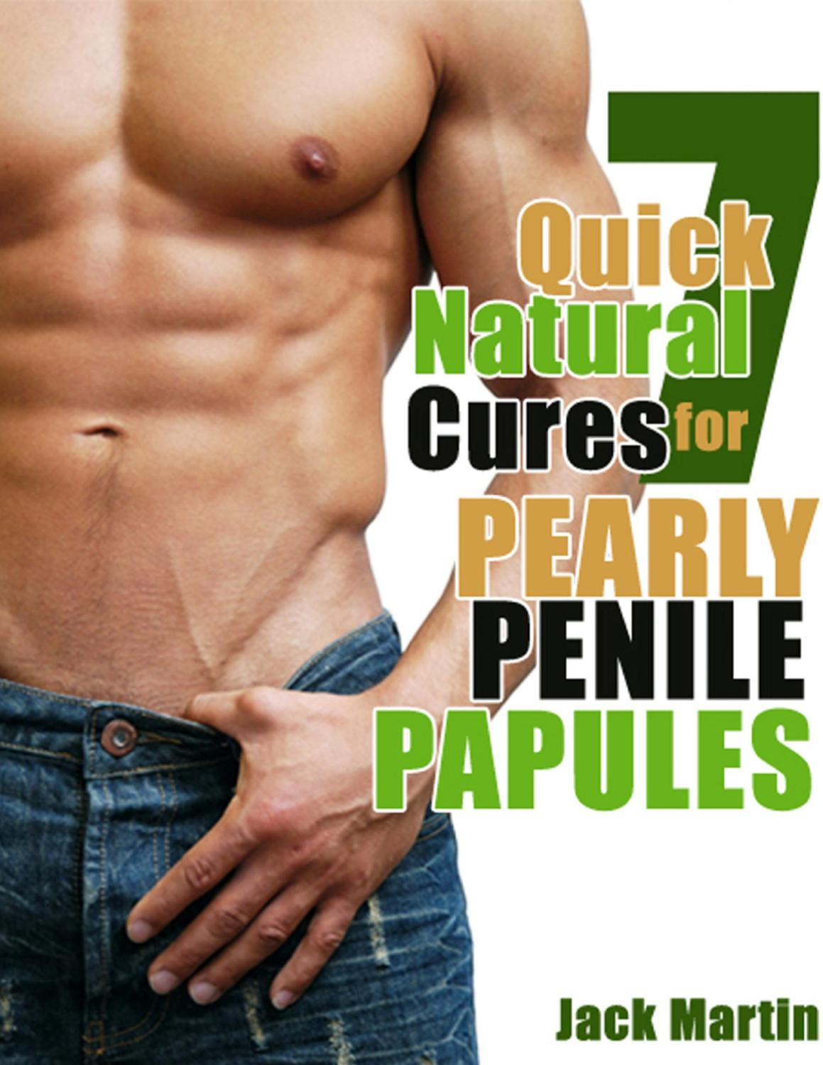 Penile papules away will go Pearly penile