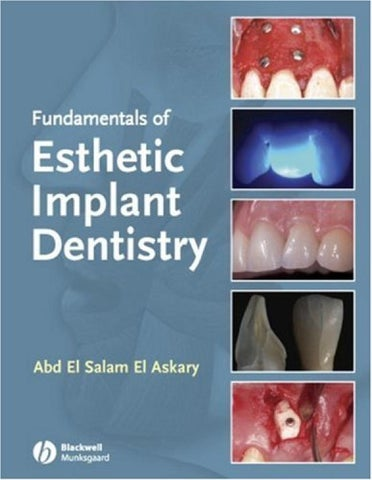 Veterinary Reinhard Stainless Steel Tooth Forcep v309