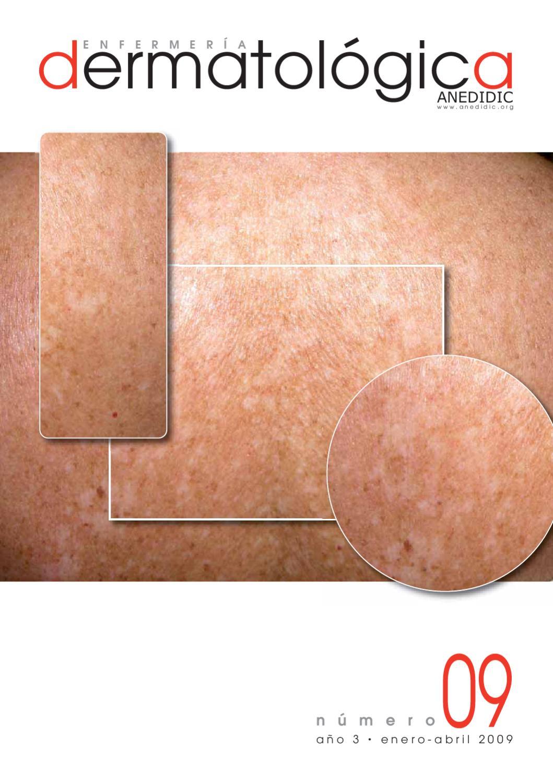 marca de erección de biopelículas orales de