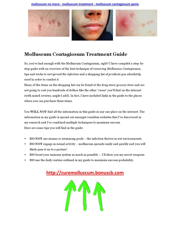 Molluscum No More - Molluscum Treatment - Molluscum -3115