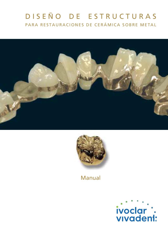 Manual para dise o de estructuras para restauraciones de for Disenos para ceramica