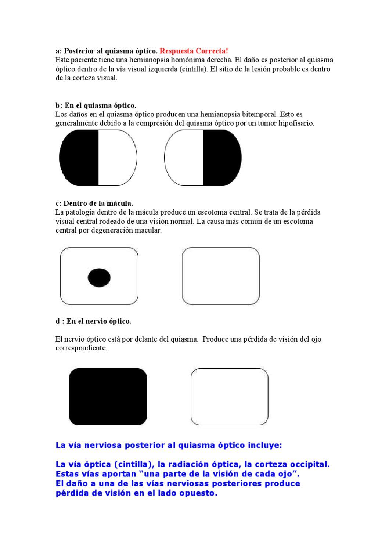 Lesión de la vía óptica Respuesta by Alberto Velazquez - issuu
