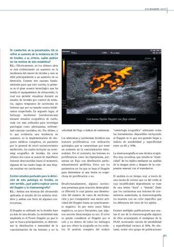 Page 31 of EQUIPAMIENTO Y OPERADOR: FACTORES FUNDAMENTALES EN EL DIAGNÓSTICO DE LA ENFERMEDAD TIROIDEA