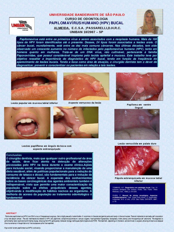 papilloma del palato duro examinarea vaginului cu negi genitale
