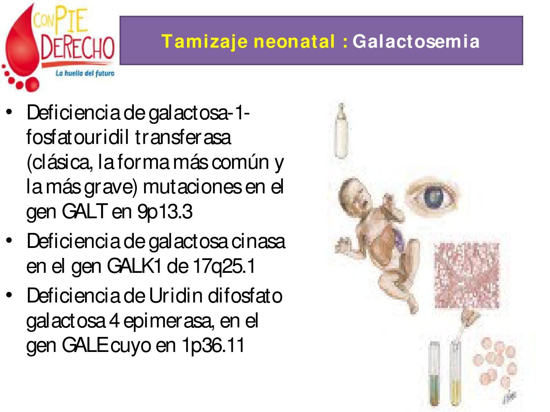 Tamisaje By Carlos Eduardo Velasco Issuu Buy 3 Get 1 Free Galten