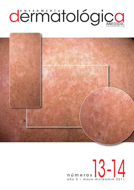 Cicatrizante derecha icd 10 pierna no úlcera