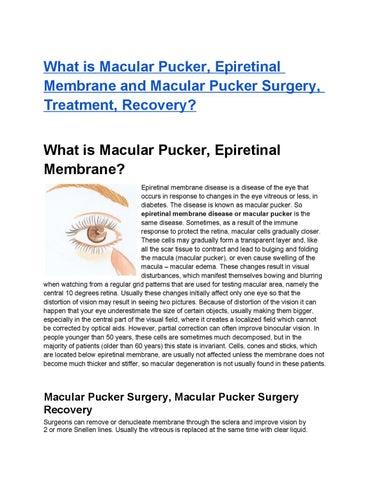 What Is Macular Pucker Epiretinal Membrane And Macular Pucker