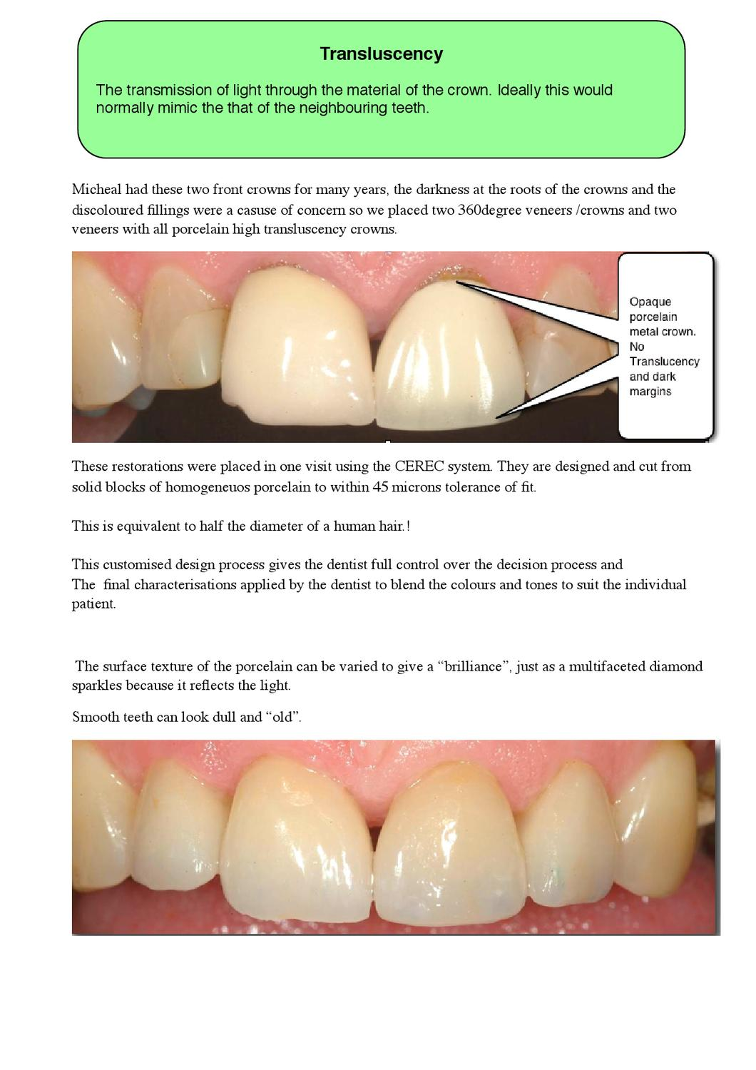 How Much Is A Crown >> How Much Is Dental Crown By Gate Clinic Issuu