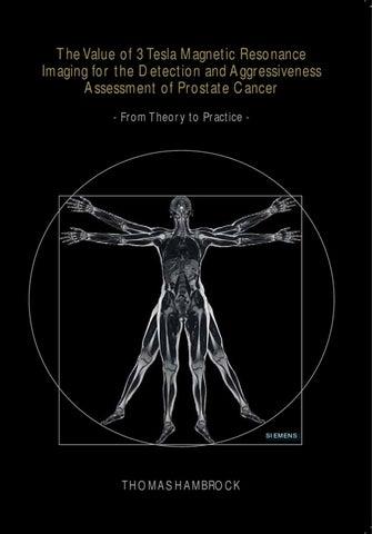 cáncer de próstata gg2