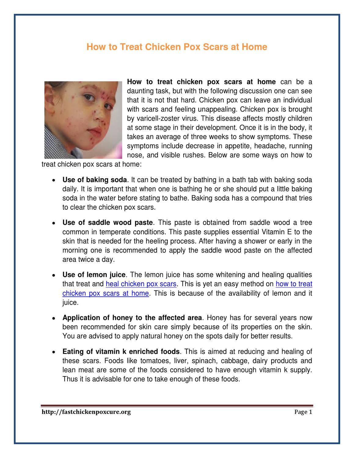 How To Treat Chicken Pox Scars At Home By Lucia Kimberly Issuu