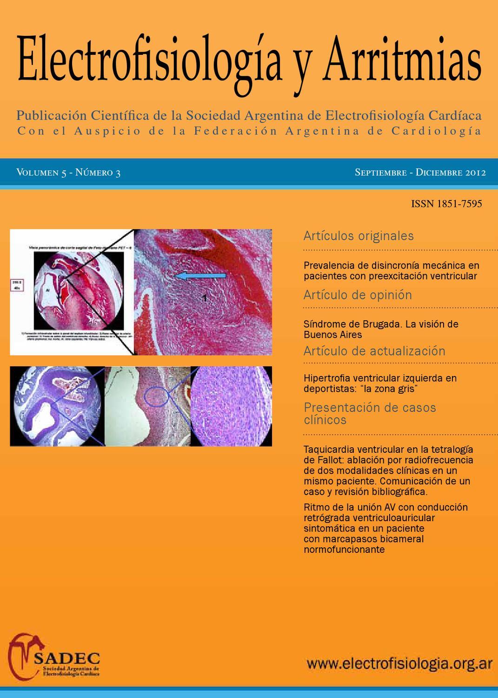 Revista Electrofisiología y Arritmias Vol 5 Num 3 by SADEC - issuu