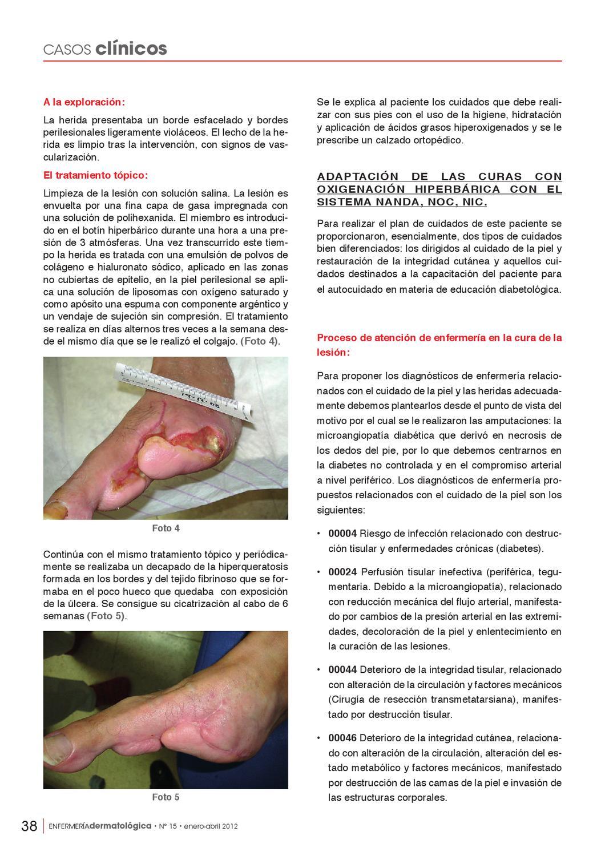 riesgo de infección relacionada con diabetes