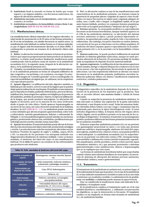 amiloidosis neuropatía craneal en diabetes