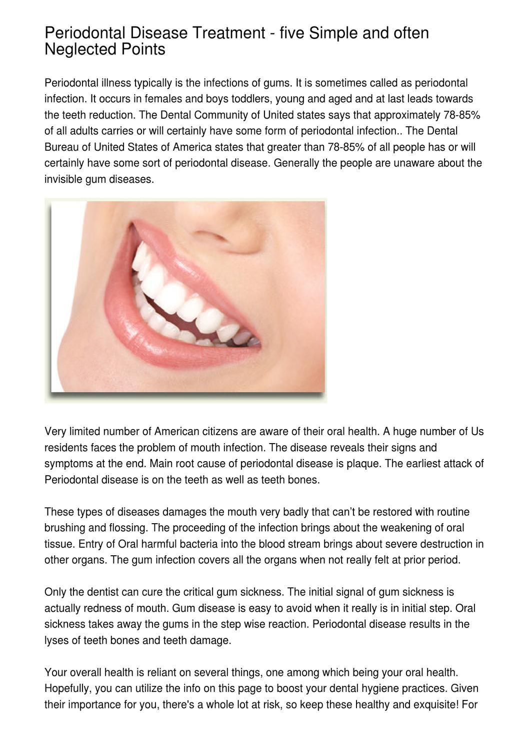 Periodontal Disease Treatment - five Simple and often Neglected