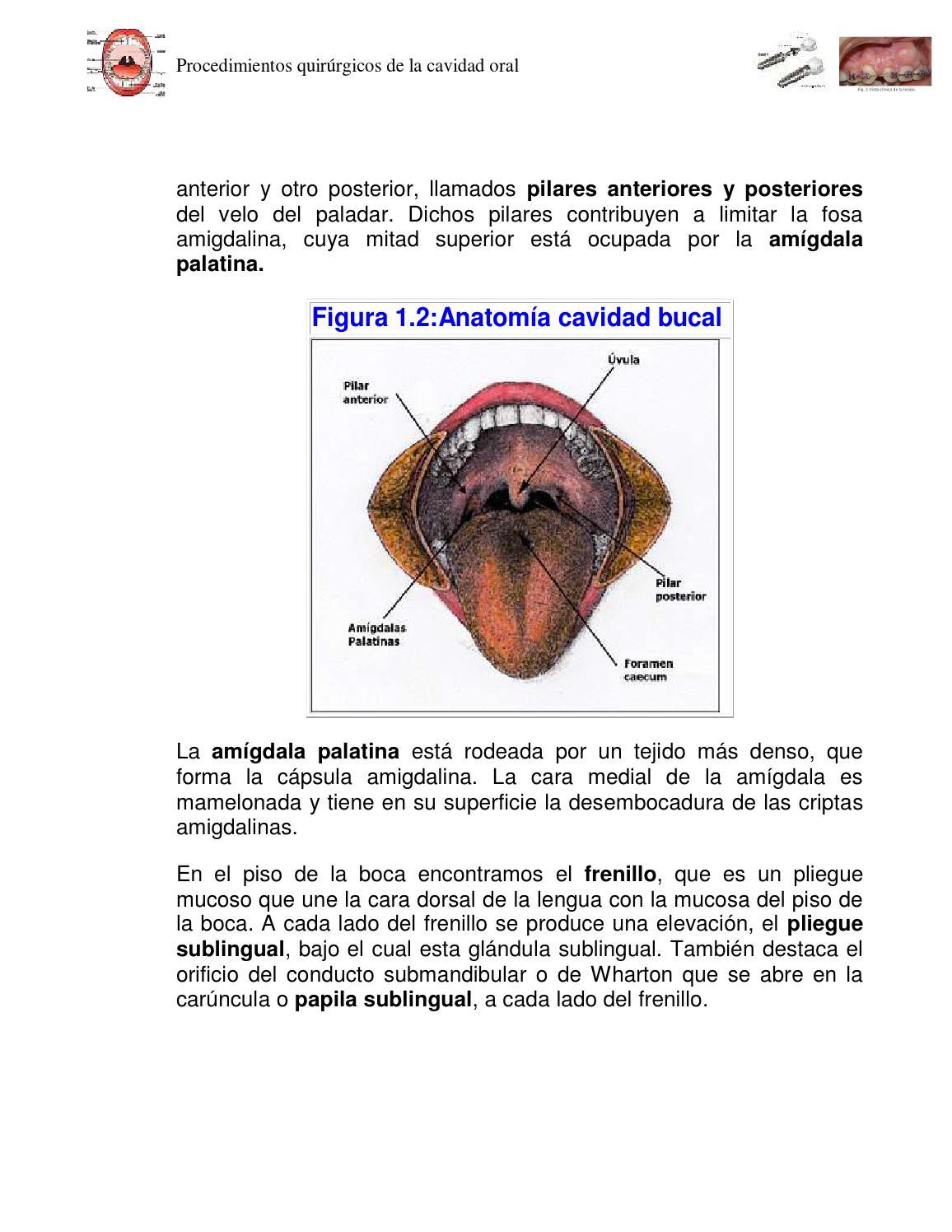 Procedimientos quirurgicos en la cavidad oral 2do tema by soluciones ...