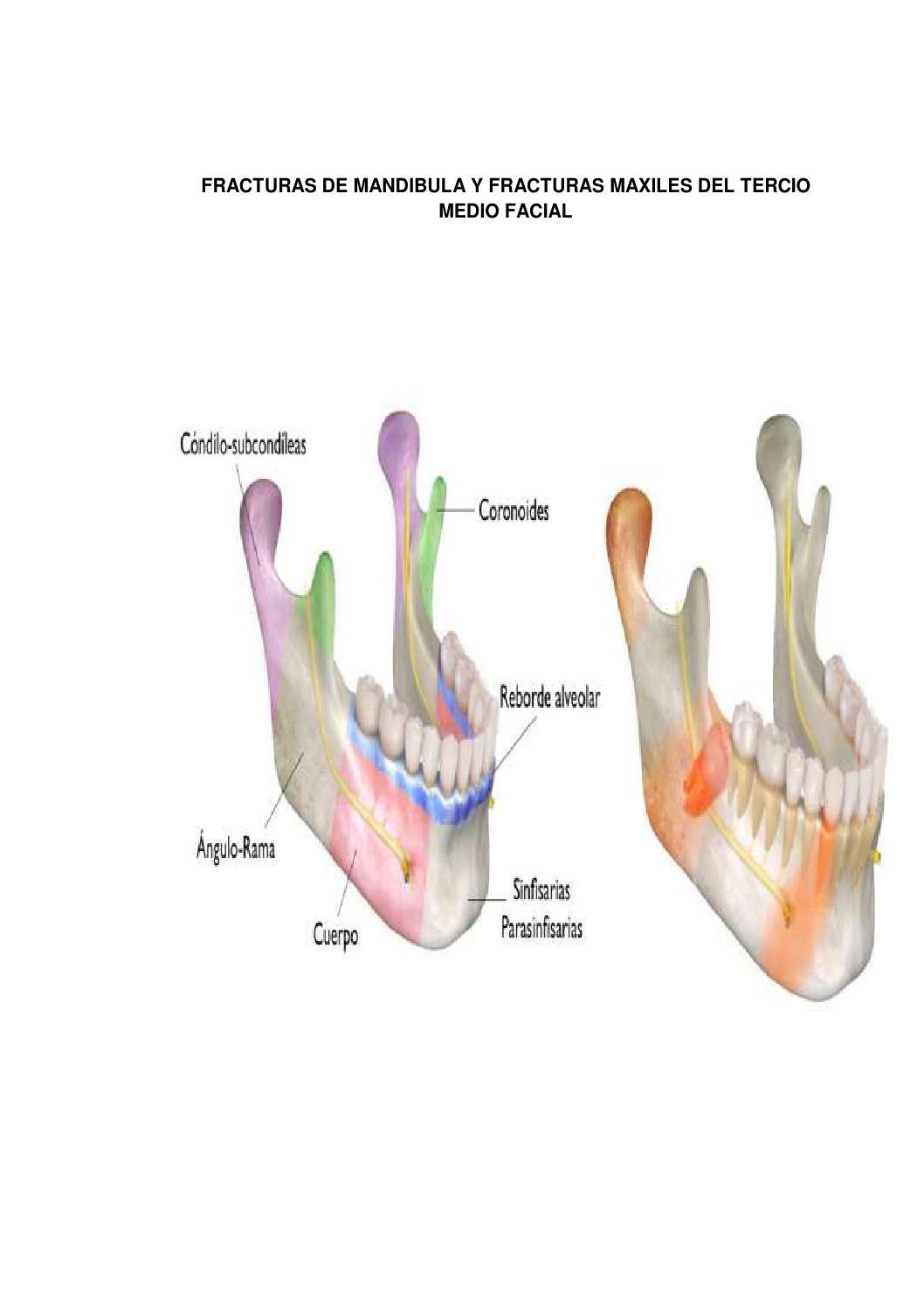 Seminar 12 mandibular fractures/ dental implant courses by Indian ...