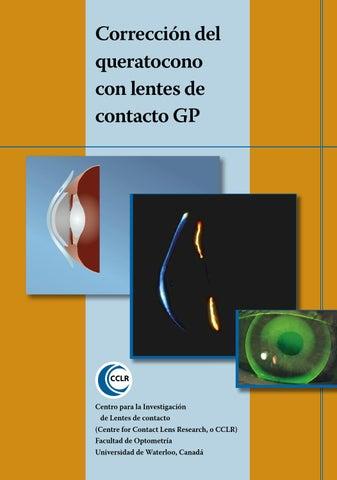 80c0a0920b Corrección del queratocono con lentes de contacto GP Corrección del  queratocono con lentes de contacto GP
