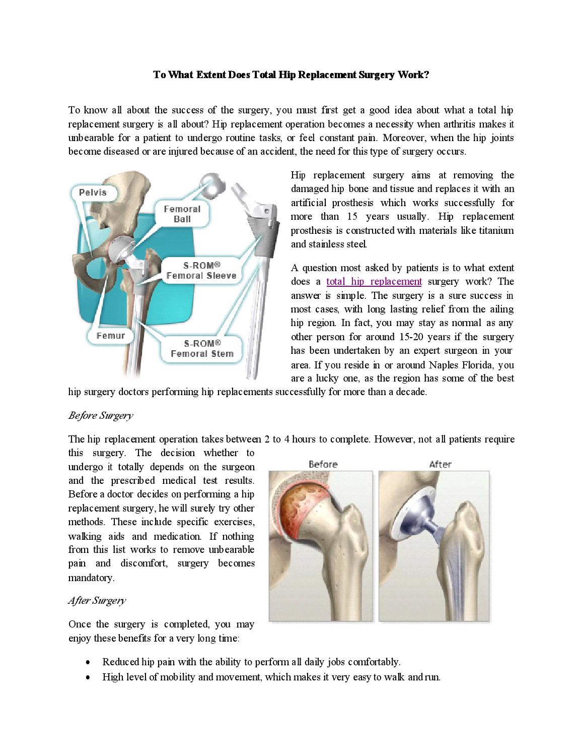 To what extent does total hip replacement surgery work by