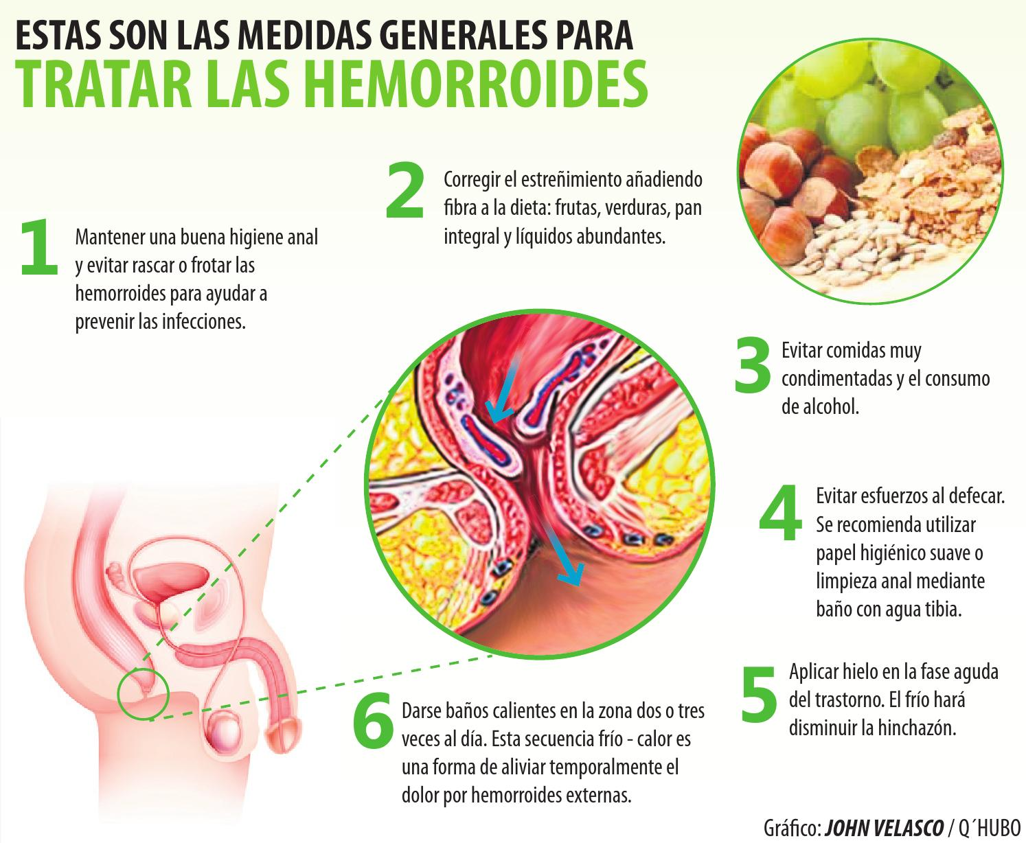 Comidas para evitar hemorroides