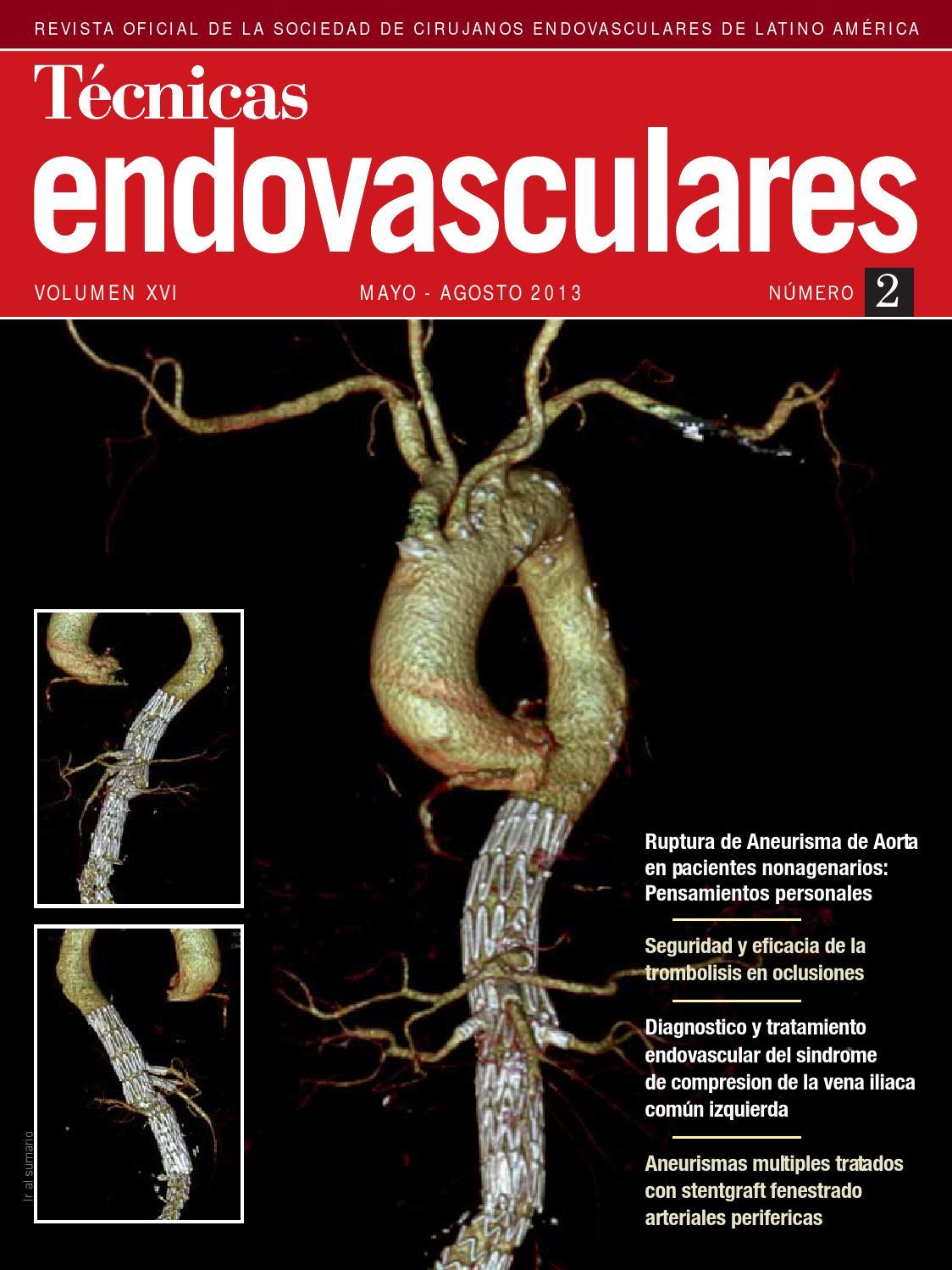 Técnicas endovasculares VOLUMEN XVI Número 2 by salutaria - issuu