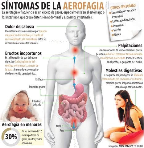 sintomas flatulencia dolor abdominal