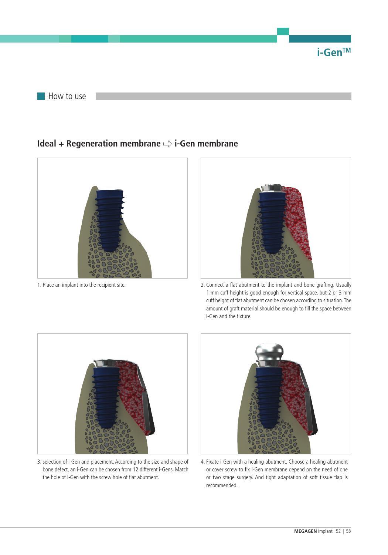 I-Gen Membrane by Megagen Romania Megagen - issuu