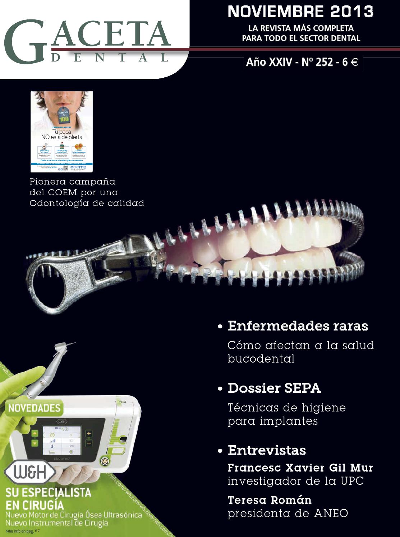 Gaceta Dental - 252 by Peldaño - issuu