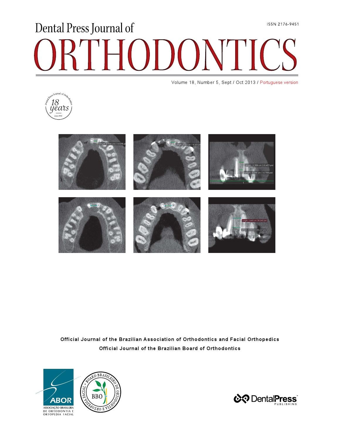 Dental press journal of orthodontics v 18 n 5 sept oct 2013 by dental press journal of orthodontics v 18 n 5 sept oct 2013 by dental press international issuu fandeluxe Choice Image