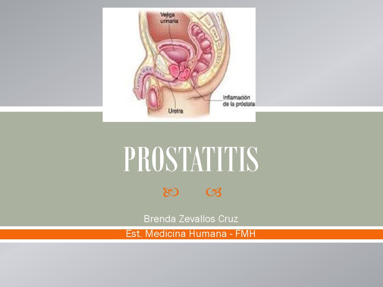 0 videos de operación de próstata. Mujer tiene esquema de video de próstata