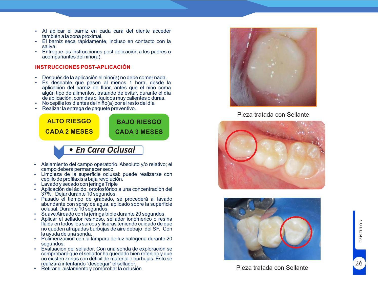 como se realiza la limpieza de la cara oclusal de los dientes