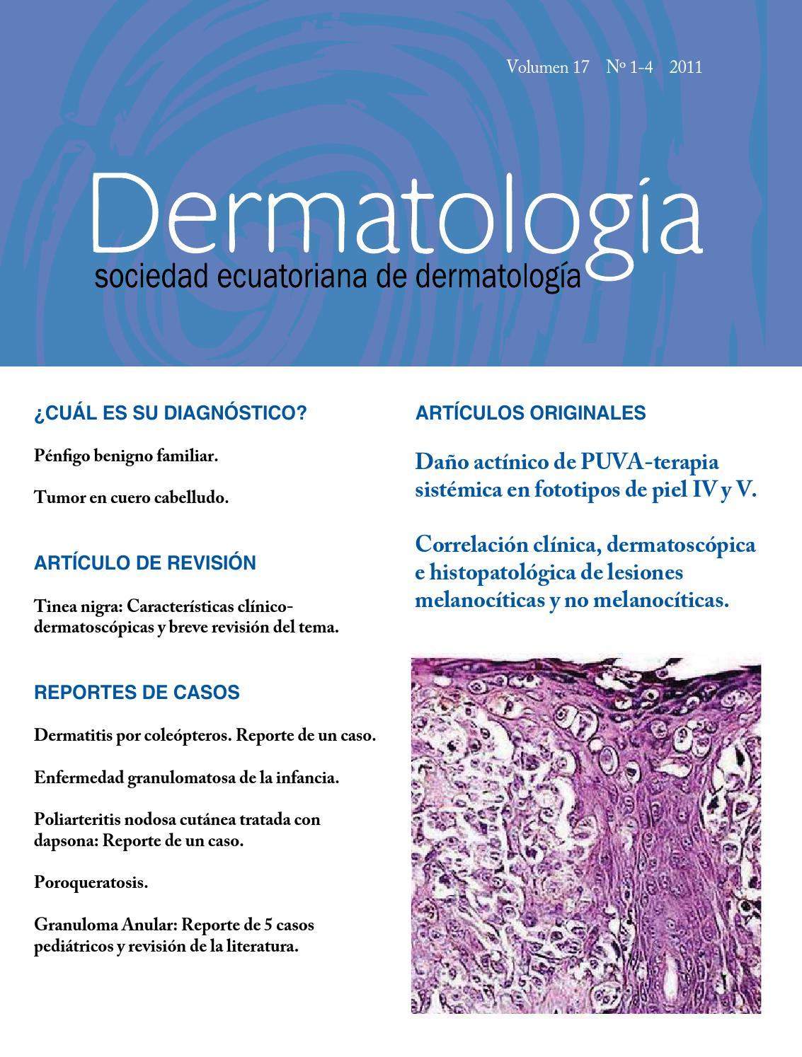 impétigo diagnóstico diferencial diabetes emedicina
