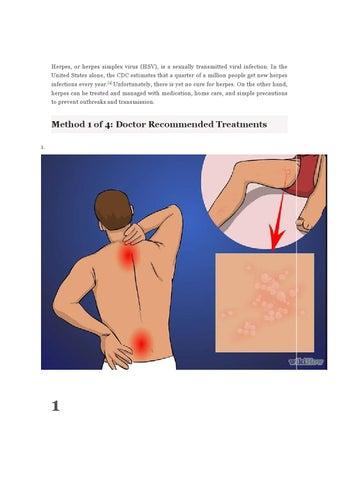 Hsv 2 Treatment By Bobhelp Issuu