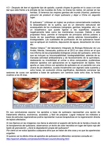 a prosztatitisben a biopsziát)