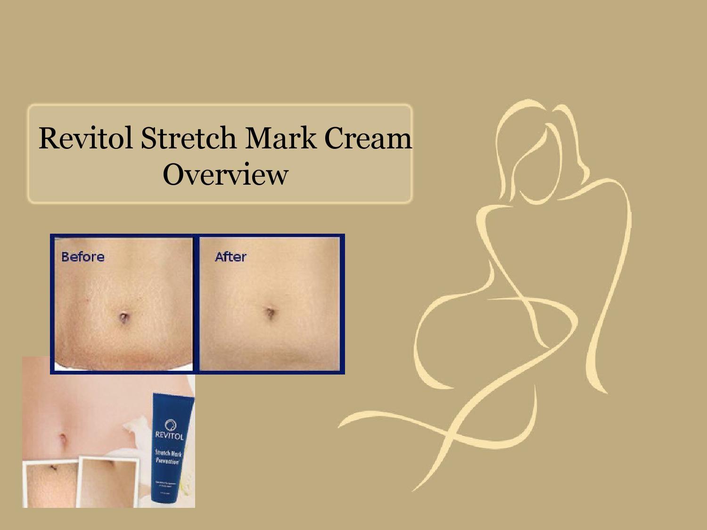 Revitol Stretch Mark Cream Overview By Ilona Dj Issuu