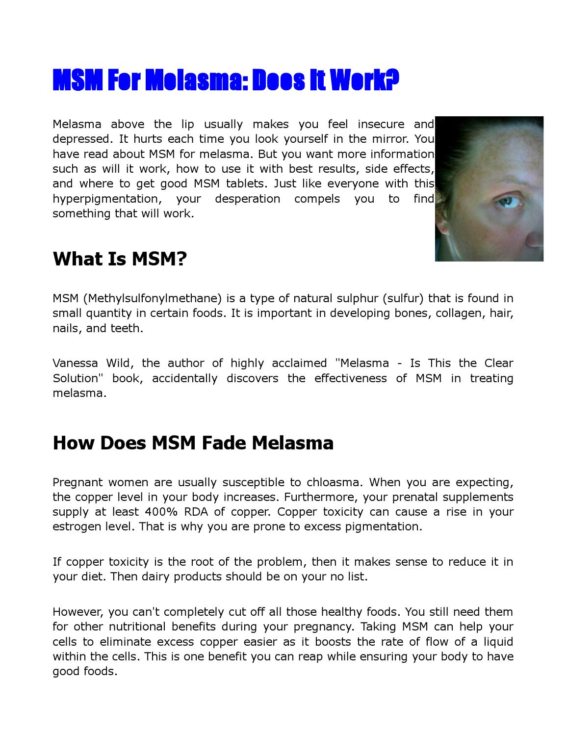 MSM for Melasma: Does It Work? by Corin - issuu