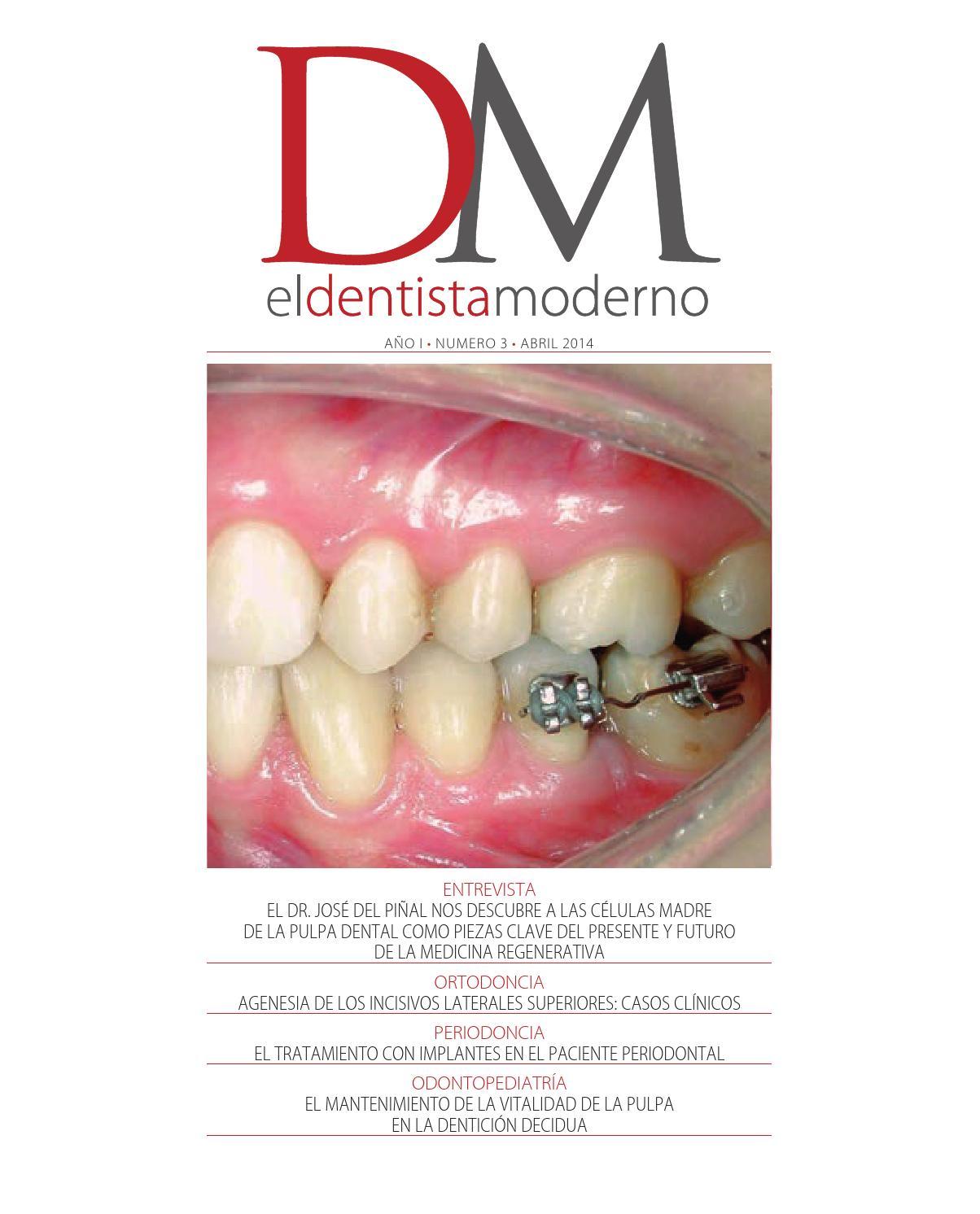 El Dentista Moderno nº 3 by Digital Newspapers S.L. - issuu