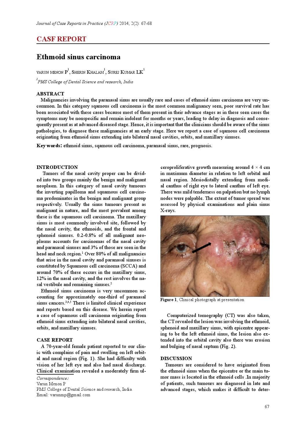 Ethmoid sinus carcinoma:A case report by Dr Varun - issuu