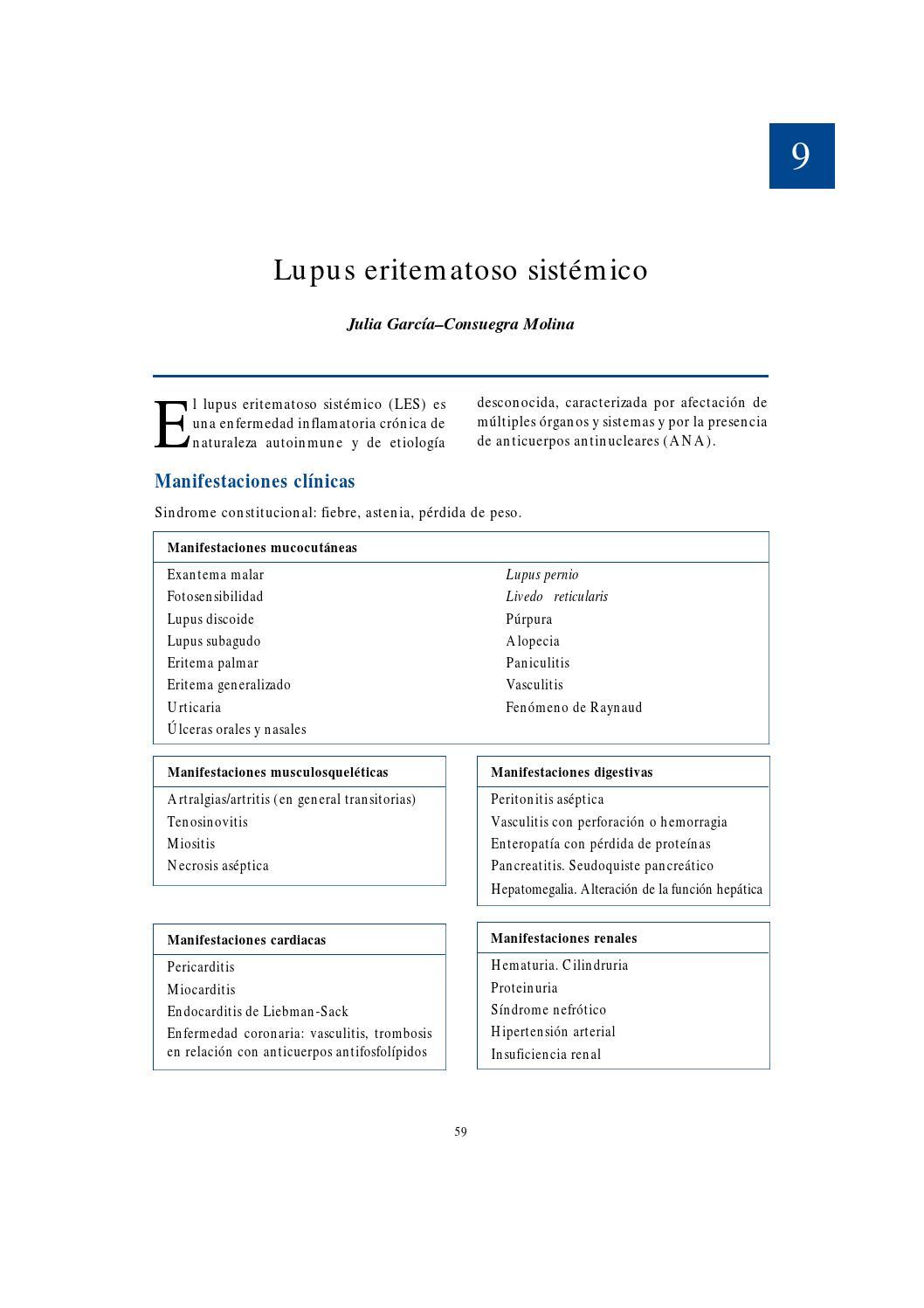 lupus+eritematoso+sistemico+perdida+de+peso