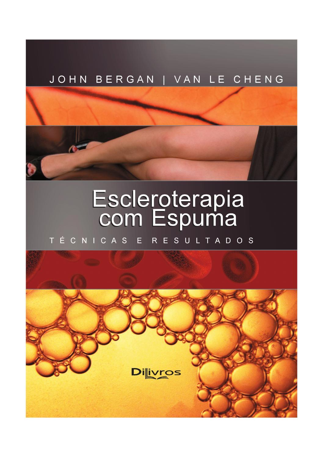 escleroterapia por injeção para malformação venosa