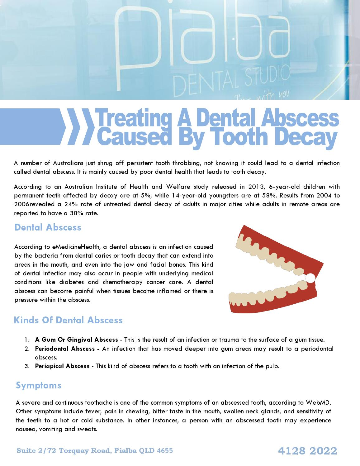 Treating a dental abscess caused by tooth decay by